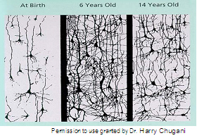 Image of brain connections at birth, 6 years old, and 14 years old