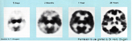 Brain scans: 5 days, 2 months, 1 year, 28 years